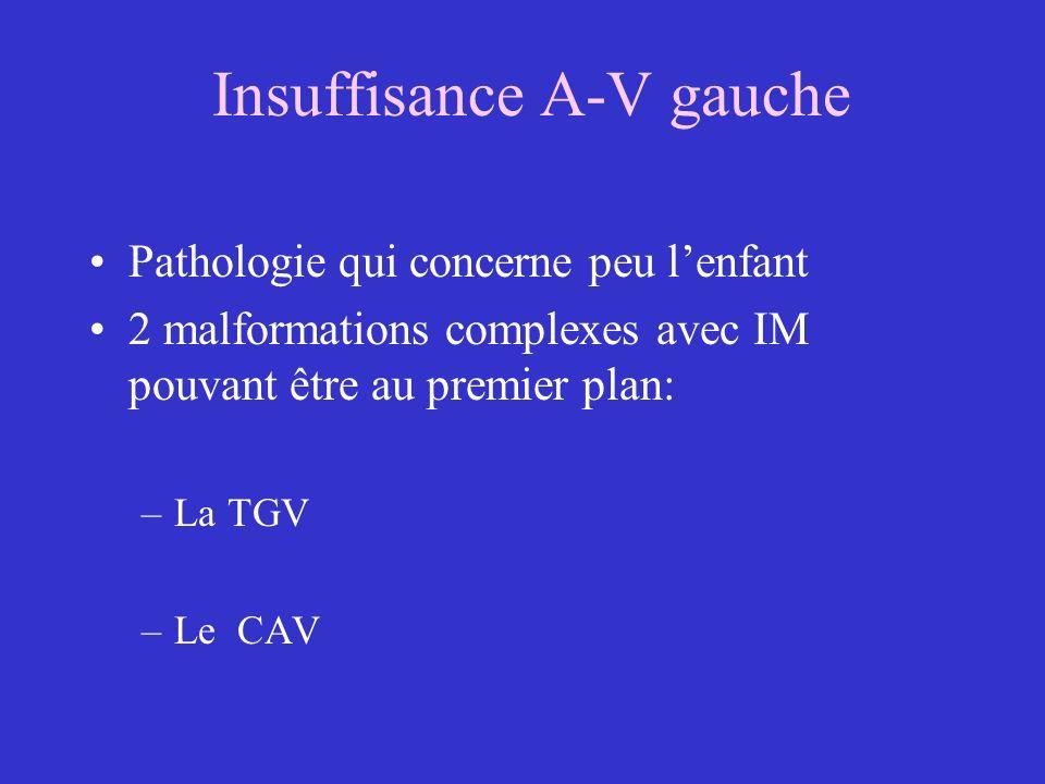 Insuffisance A-V gauche Pathologie qui concerne peu lenfant 2 malformations complexes avec IM pouvant être au premier plan: –La TGV –Le CAV