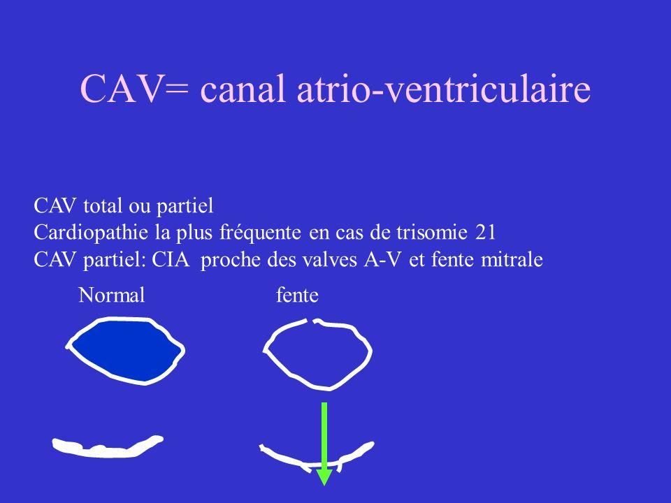 CAV= canal atrio-ventriculaire CAV total ou partiel Cardiopathie la plus fréquente en cas de trisomie 21 CAV partiel: CIA proche des valves A-V et fen