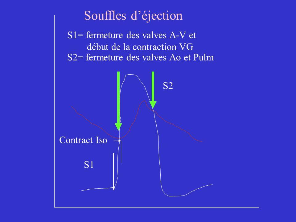 S1 S1= fermeture des valves A-V et début de la contraction VG S2 S2= fermeture des valves Ao et Pulm Contract Iso Souffles déjection