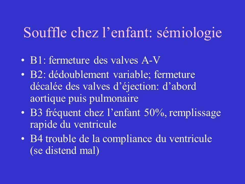 Souffle chez lenfant: sémiologie B1: fermeture des valves A-V B2: dédoublement variable; fermeture décalée des valves déjection: dabord aortique puis