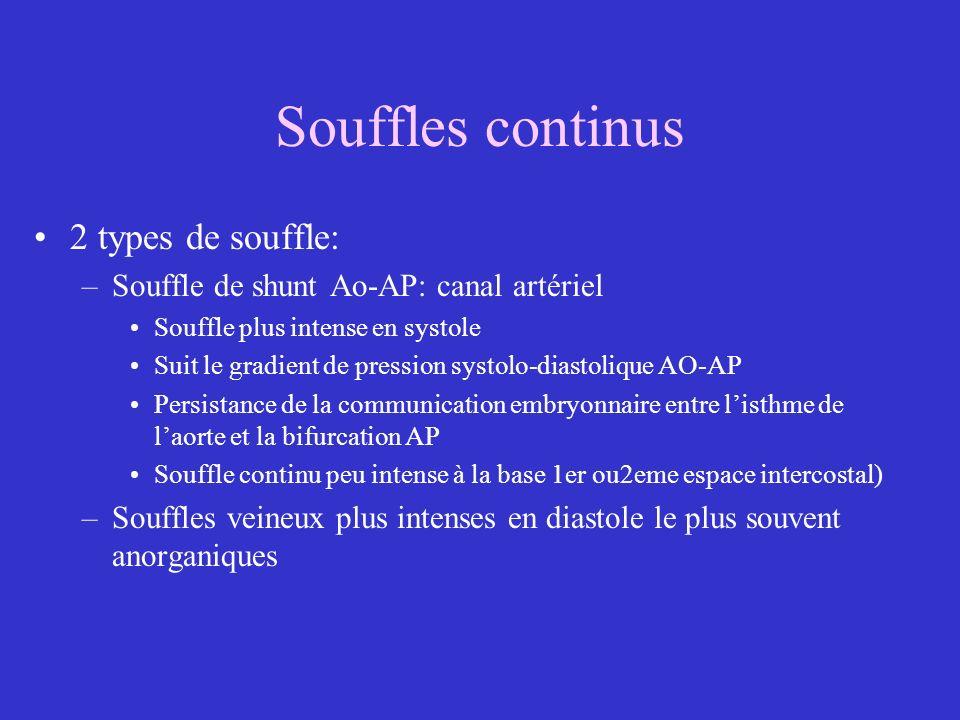 Souffles continus 2 types de souffle: –Souffle de shunt Ao-AP: canal artériel Souffle plus intense en systole Suit le gradient de pression systolo-dia