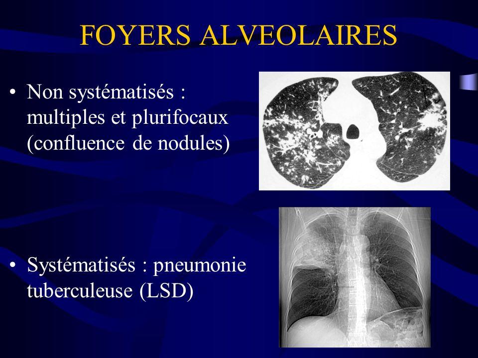 FOYERS ALVEOLAIRES Non systématisés : multiples et plurifocaux (confluence de nodules) Systématisés : pneumonie tuberculeuse (LSD)