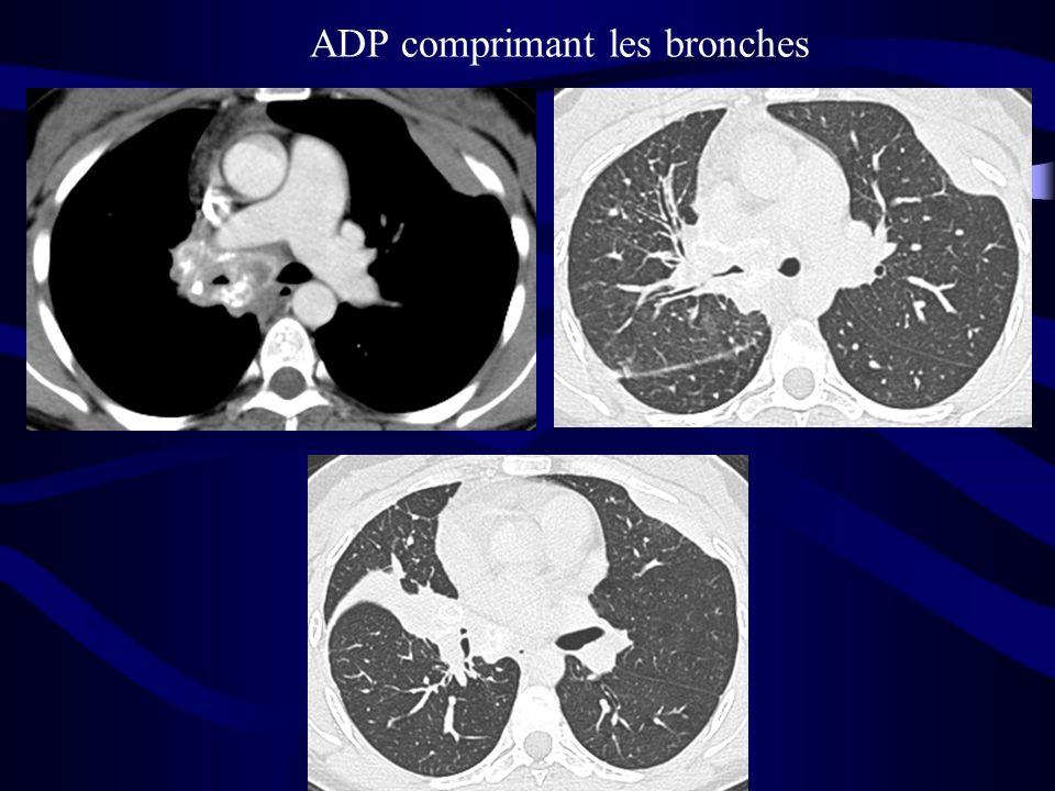 ADP comprimant les bronches