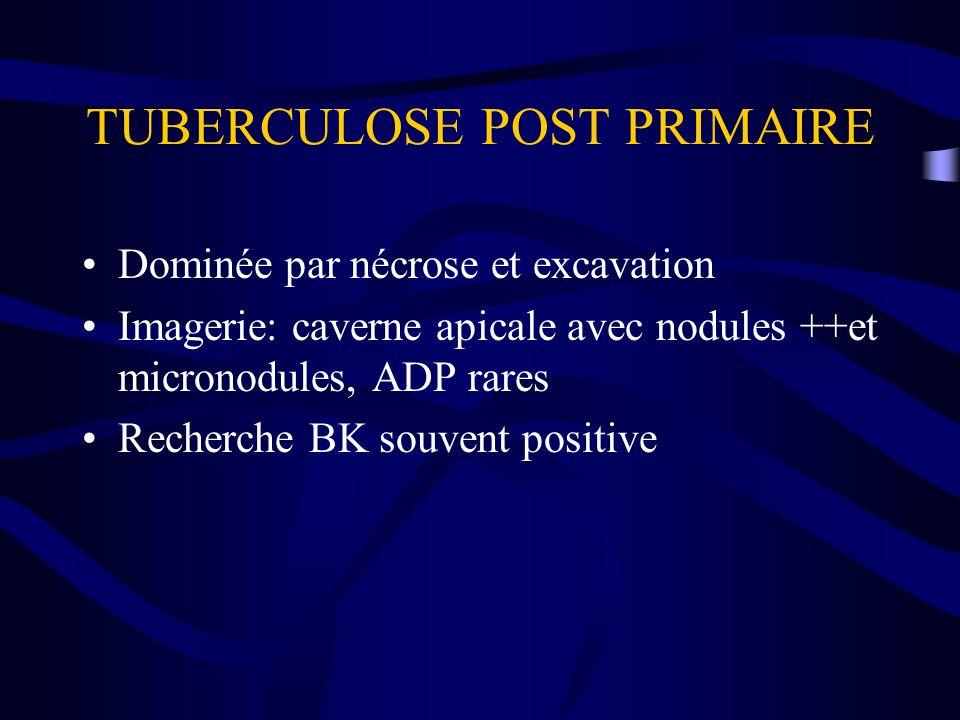 TUBERCULOSE POST PRIMAIRE Dominée par nécrose et excavation Imagerie: caverne apicale avec nodules ++et micronodules, ADP rares Recherche BK souvent p