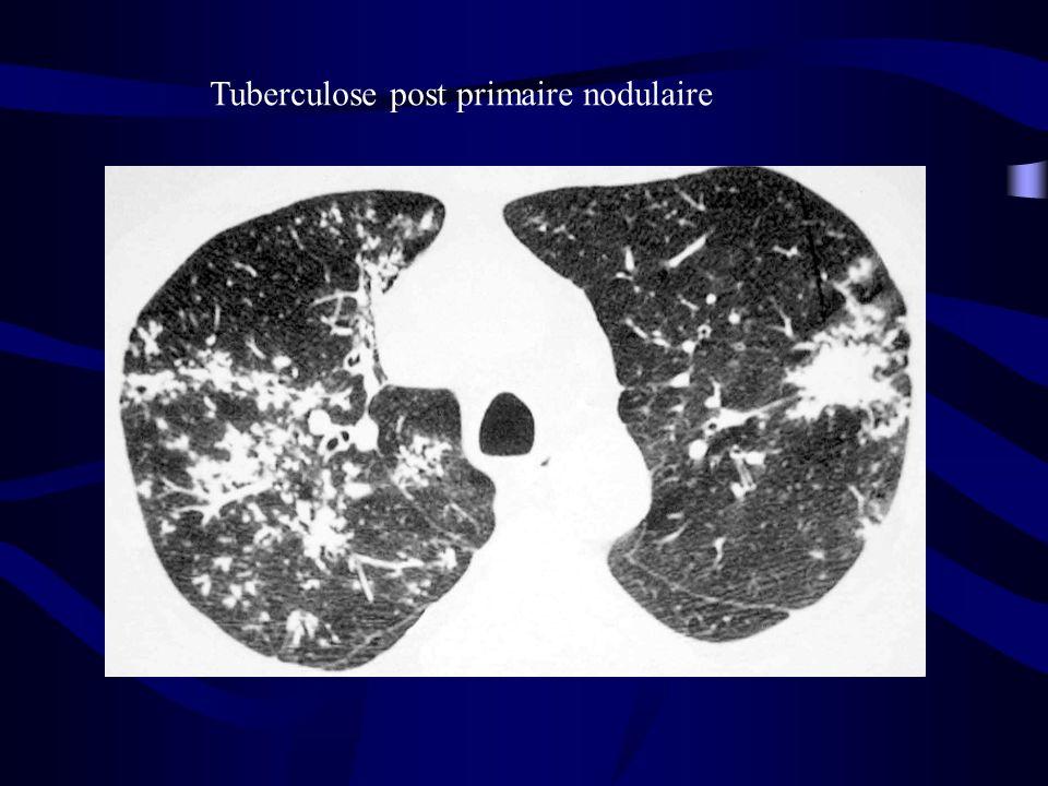 Tuberculose post primaire nodulaire