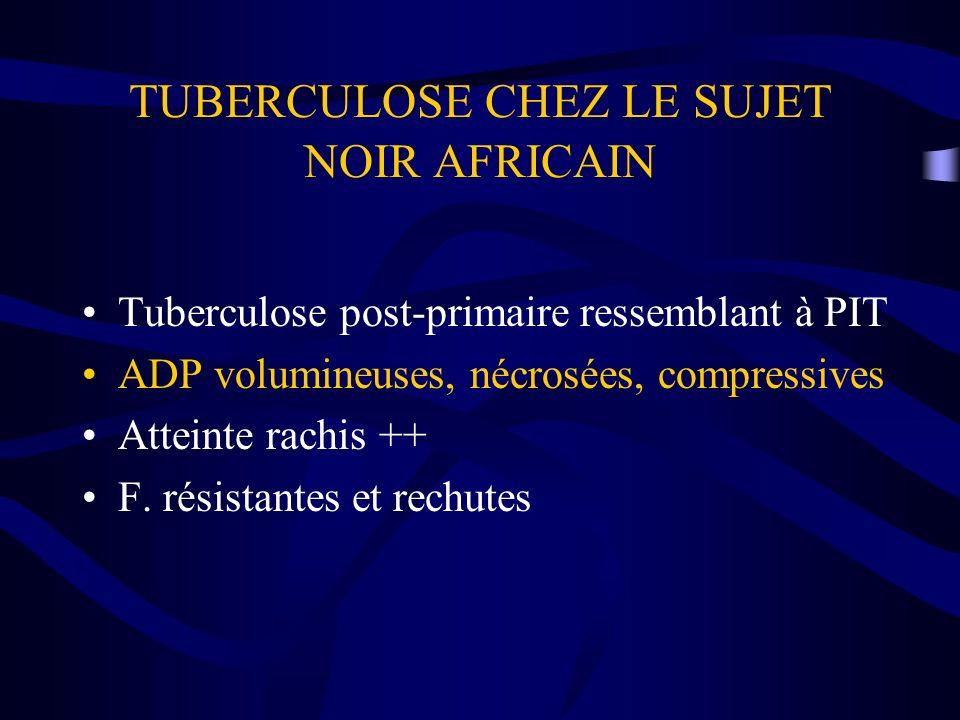 TUBERCULOSE CHEZ LE SUJET NOIR AFRICAIN Tuberculose post-primaire ressemblant à PIT ADP volumineuses, nécrosées, compressives Atteinte rachis ++ F. ré