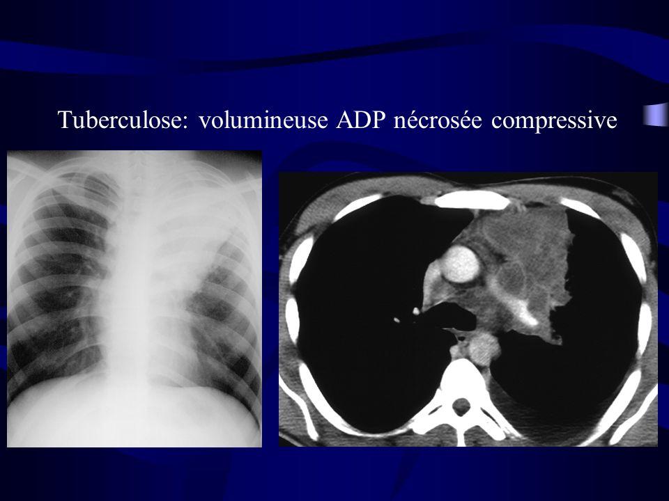 Tuberculose: volumineuse ADP nécrosée compressive