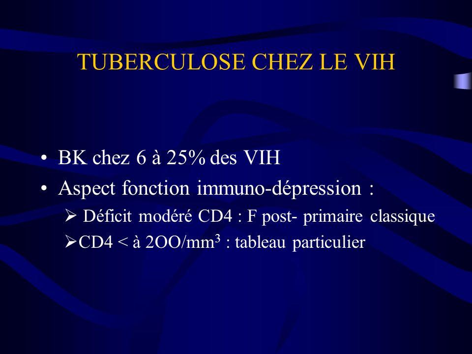 TUBERCULOSE CHEZ LE VIH BK chez 6 à 25% des VIH Aspect fonction immuno-dépression : Déficit modéré CD4 : F post- primaire classique CD4 < à 2OO/mm 3 :