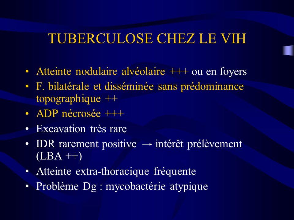 TUBERCULOSE CHEZ LE VIH Atteinte nodulaire alvéolaire +++ ou en foyers F. bilatérale et disséminée sans prédominance topographique ++ ADP nécrosée +++
