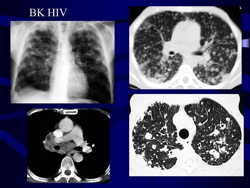 BK HIV