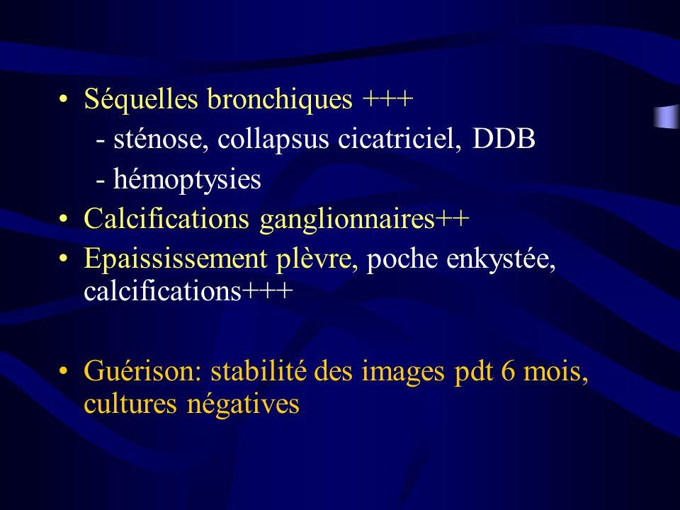 Séquelles bronchiques +++ - sténose, collapsus cicatriciel, DDB - hémoptysies Calcifications ganglionnaires++ Epaississement plèvre, poche enkystée, c