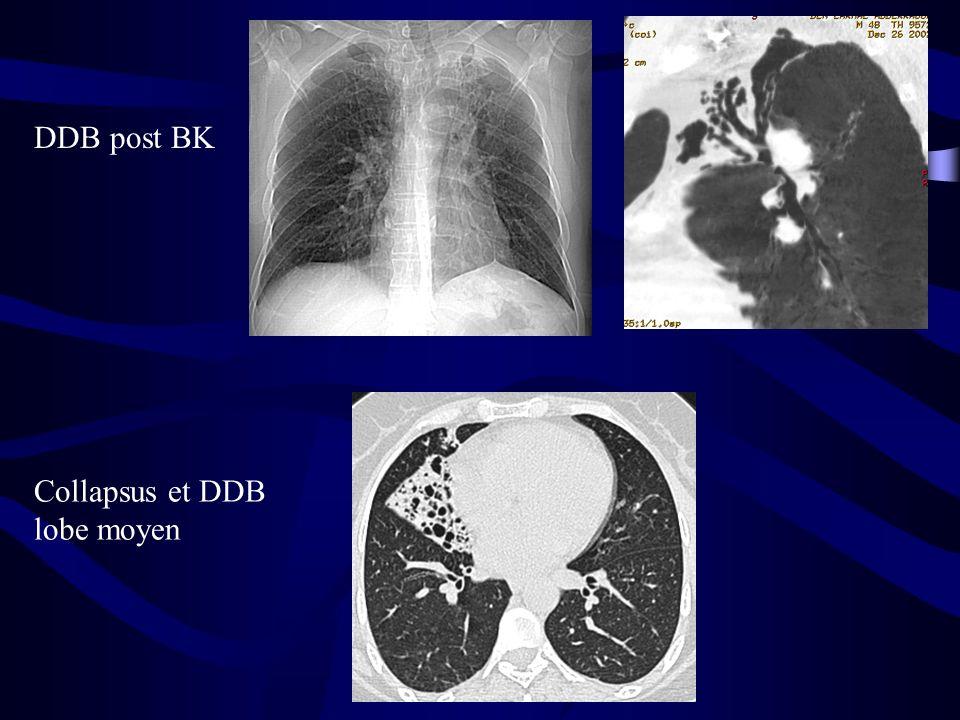 DDB post BK Collapsus et DDB lobe moyen