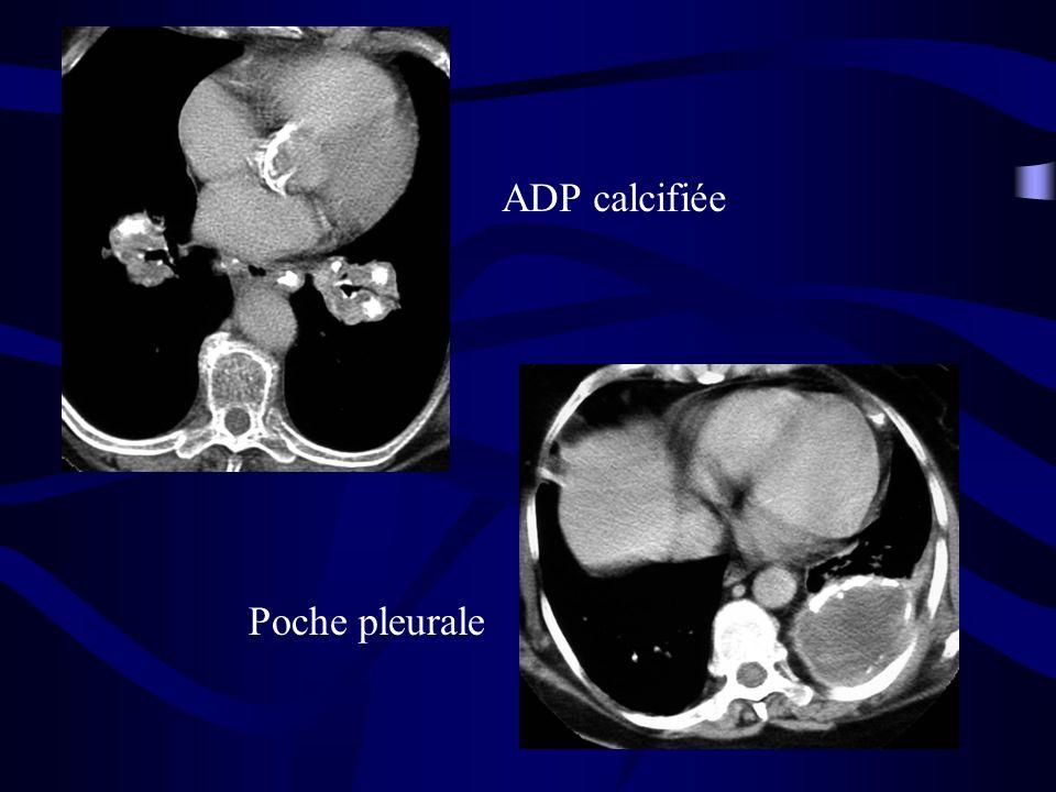 Poche pleurale ADP calcifiée