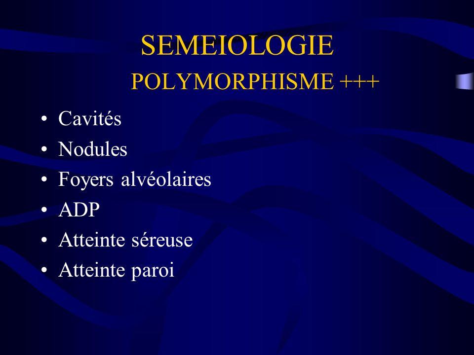 SEMEIOLOGIE POLYMORPHISME +++ Cavités Nodules Foyers alvéolaires ADP Atteinte séreuse Atteinte paroi