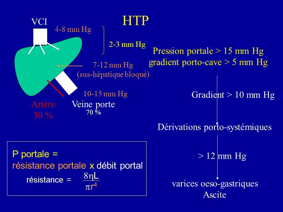 HTP Pression portale > 15 mm Hg gradient porto-cave > 5 mm Hg Artère 30 % Veine porte 70 % 10-15 mm Hg 4-8 mm Hg Dérivations porto-systémiques varices