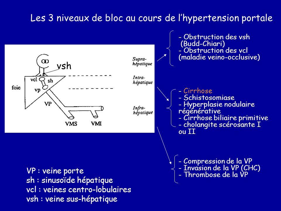 Les 3 niveaux de bloc au cours de lhypertension portale VP : veine porte sh : sinusoïde hépatique vcl : veines centro-lobulaires vsh : veine sus-hépat