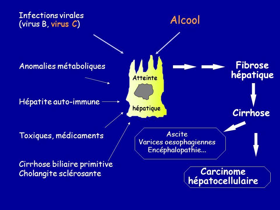 Alcool Infections virales (virus B, virus C) Anomalies métaboliques Hépatite auto-immune Cirrhose biliaire primitive Cholangite sclérosante Toxiques,
