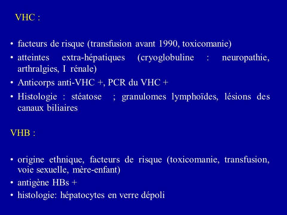 facteurs de risque (transfusion avant 1990, toxicomanie) atteintes extra-hépatiques (cryoglobuline : neuropathie, arthralgies, I rénale) Anticorps anti-VHC +, PCR du VHC + Histologie : stéatose ; granulomes lymphoïdes, lésions des canaux biliaires VHB : origine ethnique, facteurs de risque (toxicomanie, transfusion, voie sexuelle, mère-enfant) antigène HBs + histologie: hépatocytes en verre dépoli VHC :
