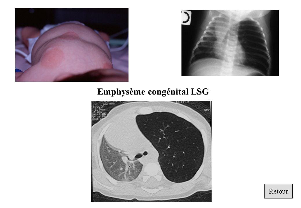Retour Emphysème congénital LSG