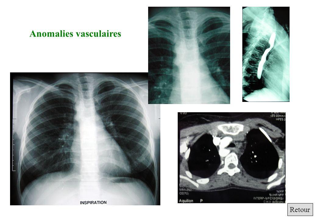 Anomalies vasculaires Retour