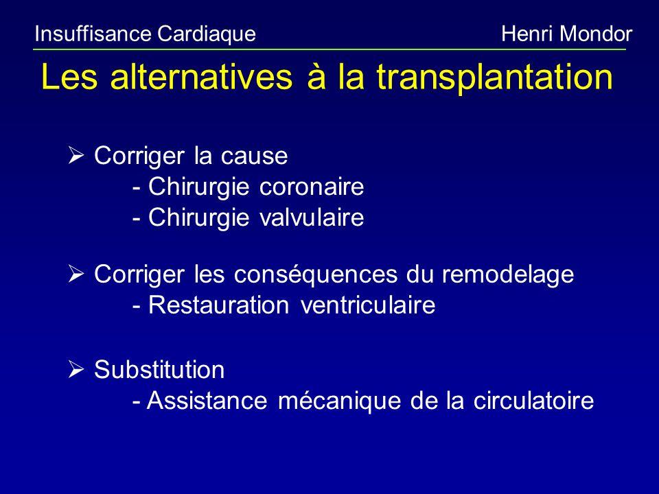 Insuffisance CardiaqueHenri Mondor Les alternatives à la transplantation Corriger la cause - Chirurgie coronaire - Chirurgie valvulaire Corriger les c