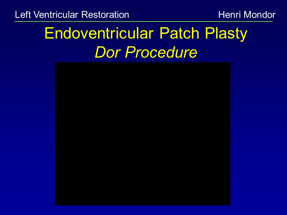 Left Ventricular RestorationHenri Mondor Endoventricular Patch Plasty Dor Procedure