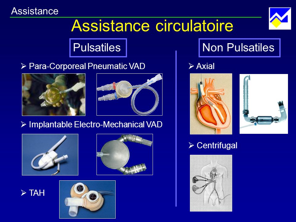 Assistance circulatoire Pulsatiles TAH Para-Corporeal Pneumatic VAD Implantable Electro-Mechanical VAD Axial Centrifugal Non Pulsatiles Assistance