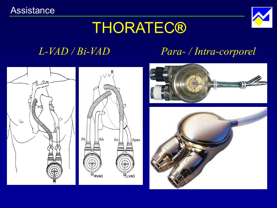 THORATEC® L-VAD / Bi-VADPara- / Intra-corporel Assistance