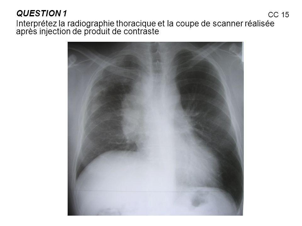 QUESTION 1 Interprétez la radiographie thoracique et la coupe de scanner réalisée après injection de produit de contraste CC 15