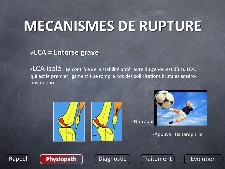 MECANISMES DE RUPTURE LCA = Entorse grave LCA isolé : Le contrôle de la stabilité antérieure du genou est dû au LCA, qui est le premier ligament à se