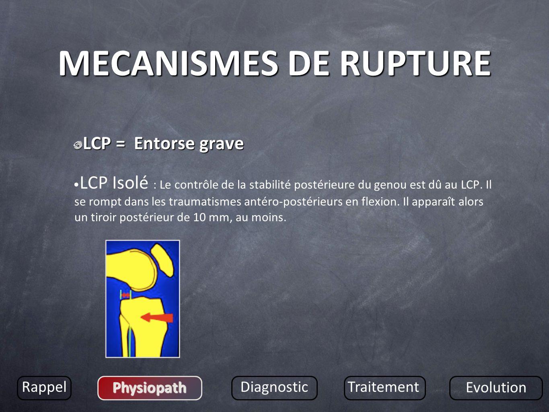MECANISMES DE RUPTURE LCP = Entorse grave LCP Isolé : Le contrôle de la stabilité postérieure du genou est dû au LCP. Il se rompt dans les traumatisme