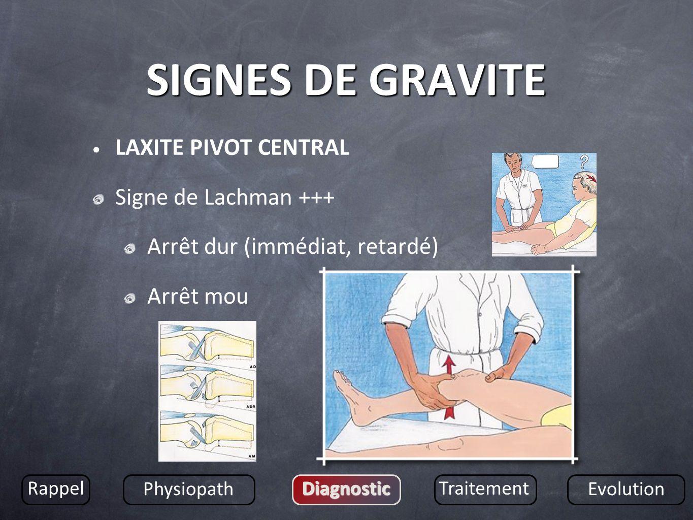 SIGNES DE GRAVITE LAXITE PIVOT CENTRAL Signe de Lachman +++ Arrêt dur (immédiat, retardé) Arrêt mou Rappel Physiopath DiagnosticTraitement Evolution