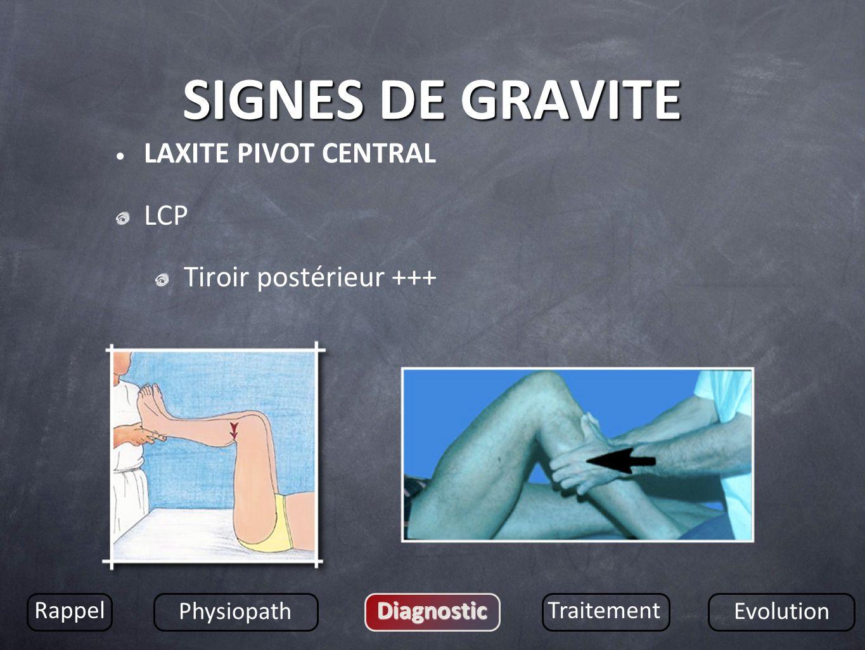 SIGNES DE GRAVITE LAXITE PIVOT CENTRAL LCP Tiroir postérieur +++ Rappel Physiopath DiagnosticTraitement Evolution
