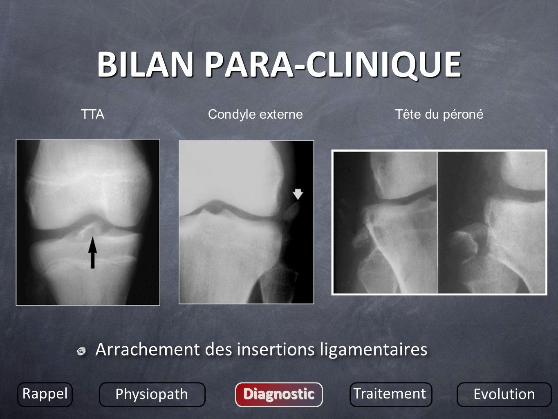 BILAN PARA-CLINIQUE Arrachement des insertions ligamentaires Rappel Physiopath DiagnosticTraitement Evolution TTACondyle externeTête du péroné