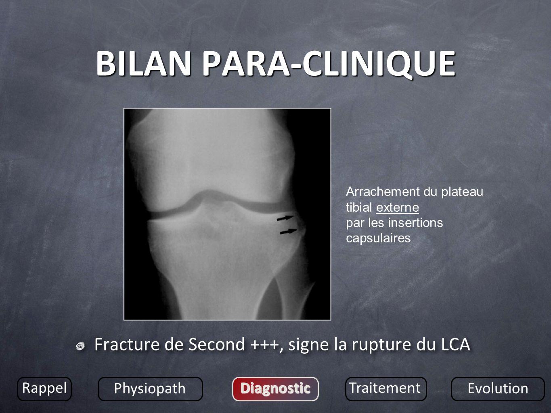 BILAN PARA-CLINIQUE Fracture de Second +++, signe la rupture du LCA Rappel Physiopath DiagnosticTraitement Evolution Arrachement du plateau tibial ext