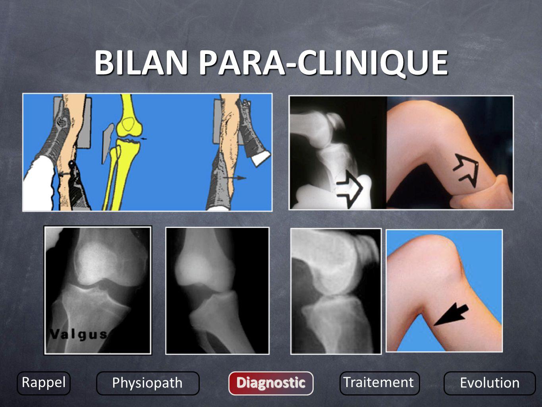 BILAN PARA-CLINIQUE Rappel Physiopath DiagnosticTraitement Evolution