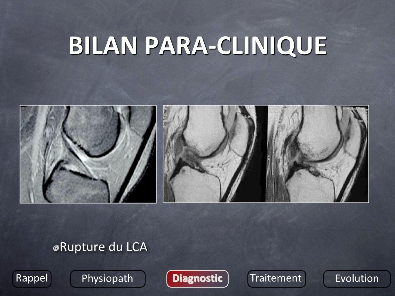 BILAN PARA-CLINIQUE Rupture du LCA Rappel Physiopath DiagnosticTraitement Evolution
