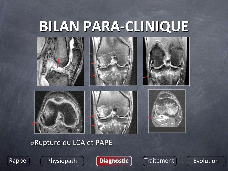 BILAN PARA-CLINIQUE Rupture du LCA et PAPE Rappel Physiopath DiagnosticTraitement Evolution