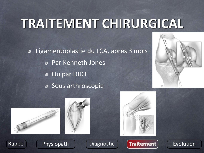TRAITEMENT CHIRURGICAL Ligamentoplastie du LCA, après 3 mois Par Kenneth Jones Ou par DIDT Sous arthroscopie Rappel Physiopath DiagnosticTraitement Ev