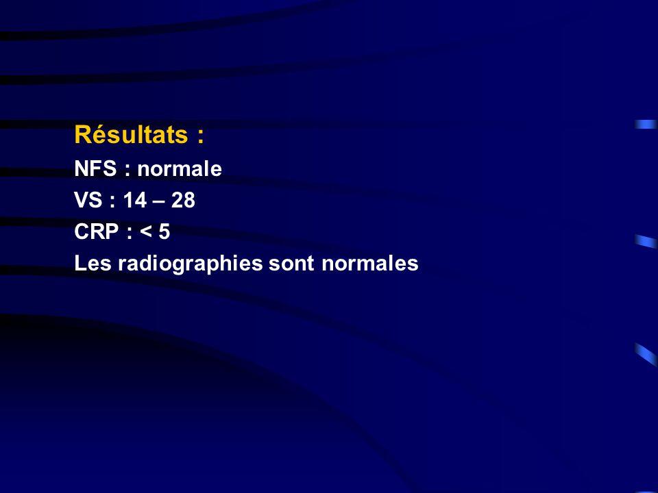 Résultats : NFS : normale VS : 14 – 28 CRP : < 5 Les radiographies sont normales