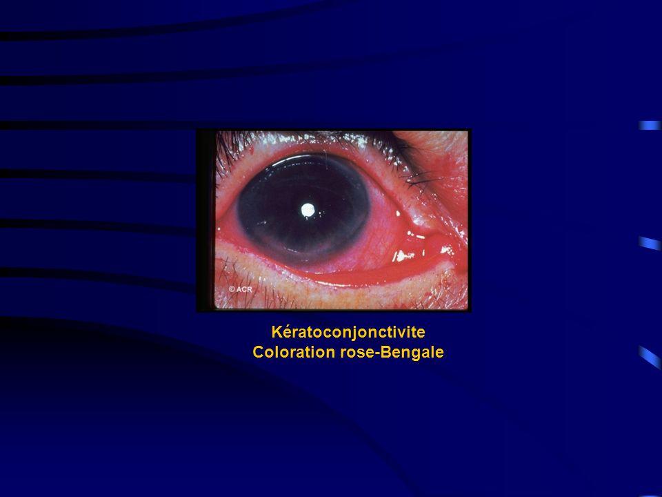 Kératoconjonctivite Coloration rose-Bengale