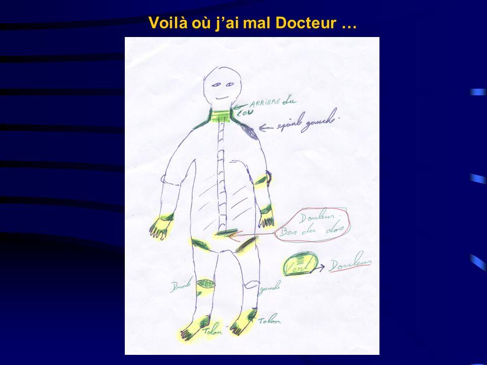 Voilà où jai mal Docteur …