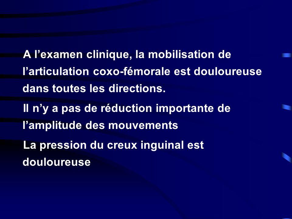 A lexamen clinique, la mobilisation de larticulation coxo-fémorale est douloureuse dans toutes les directions. Il ny a pas de réduction importante de