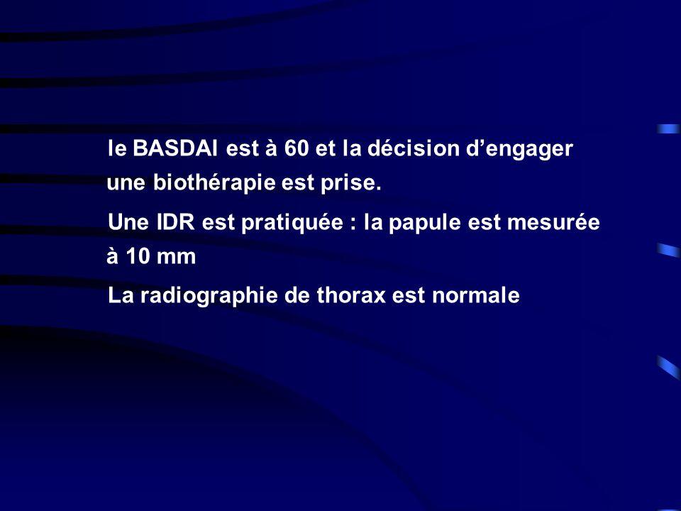le BASDAI est à 60 et la décision dengager une biothérapie est prise. Une IDR est pratiquée : la papule est mesurée à 10 mm La radiographie de thorax