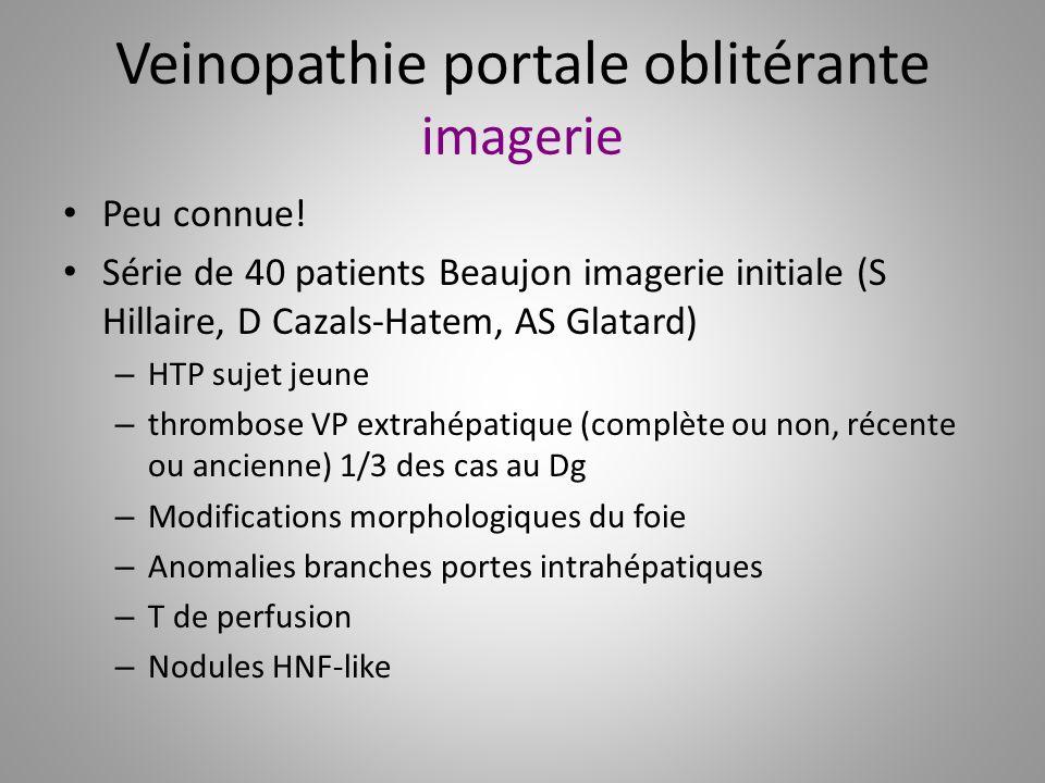 Veinopathie portale oblitérante imagerie Peu connue! Série de 40 patients Beaujon imagerie initiale (S Hillaire, D Cazals-Hatem, AS Glatard) – HTP suj