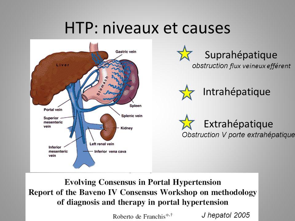 HTP: niveaux et causes Intrahépatique Extrahépatique Obstruction V porte extrahépatique Suprahépatique obstruction flux veineux efférent J hepatol 200