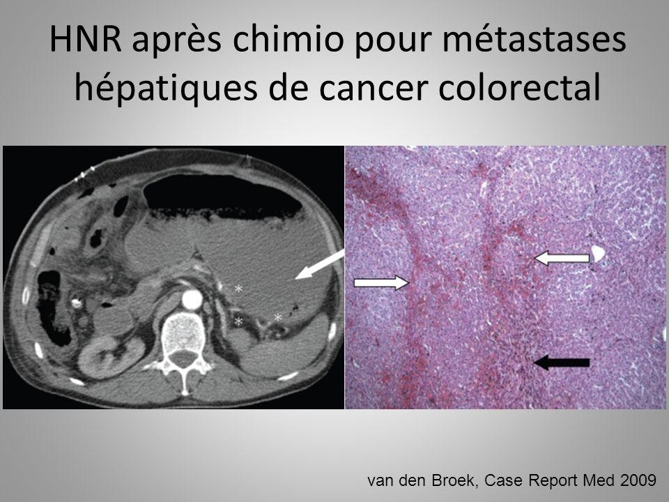 HNR après chimio pour métastases hépatiques de cancer colorectal van den Broek, Case Report Med 2009