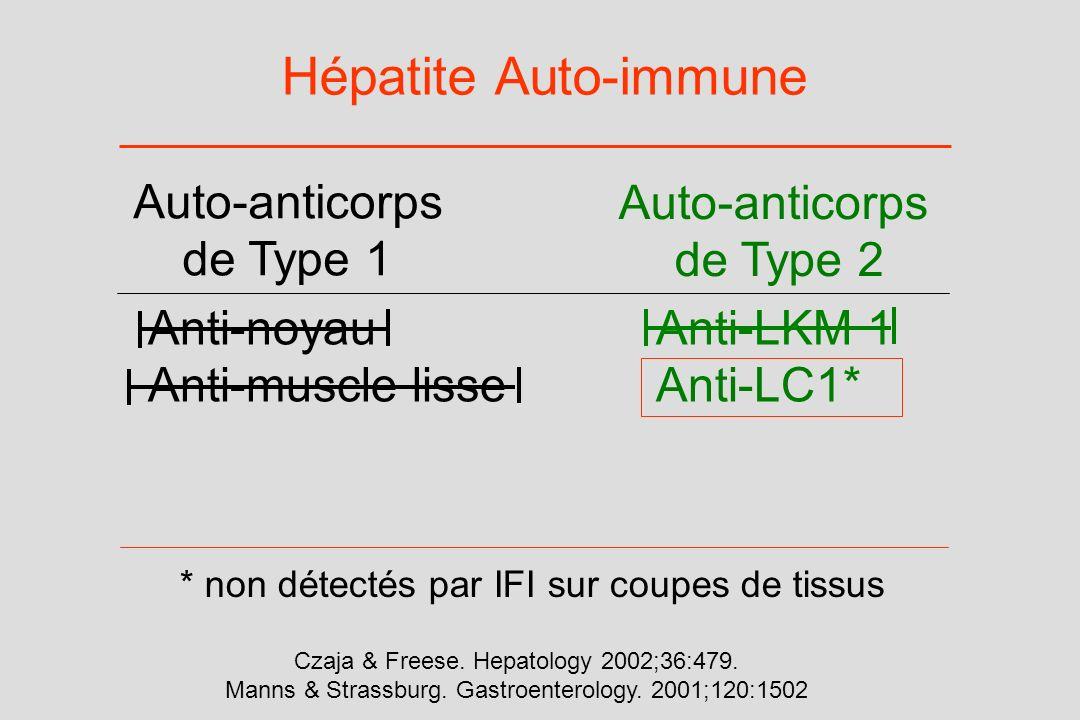 Hépatite Auto-immune Anti-noyauAnti-LKM 1 Anti-muscle lisseAnti-LC1* Auto-anticorps de Type 1 Auto-anticorps de Type 2 * non détectés par IFI sur coup