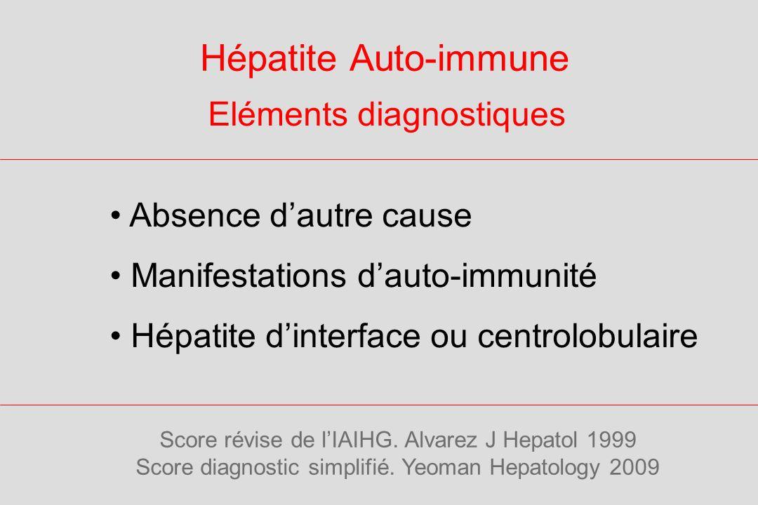 Hépatite Auto-immune Eléments diagnostiques Absence dautre cause Manifestations dauto-immunité Hépatite dinterface ou centrolobulaire Score révise de