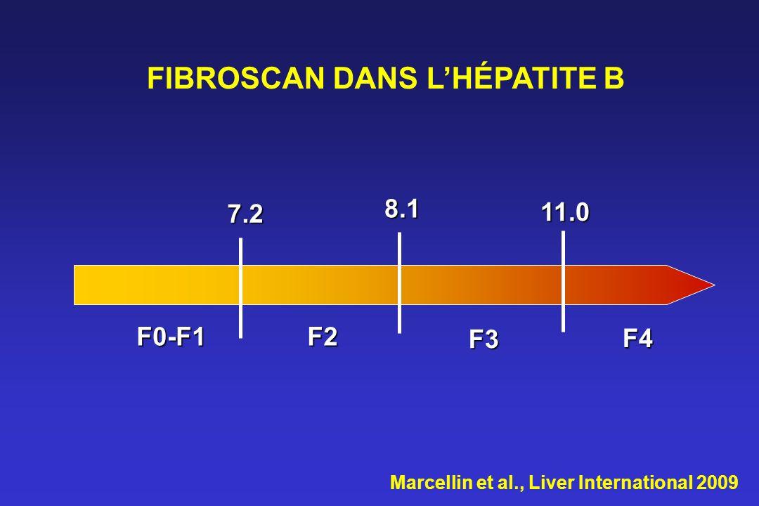 7.2 8.1 11.0 F0-F1F2 F3 F4 Marcellin et al., Liver International 2009 FIBROSCAN DANS LHÉPATITE B